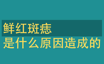 上海胎记医院排名:鲜红斑痣是什么原因造成的