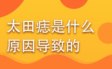 上海胎记专业医院:太田痣是什么原因导致的