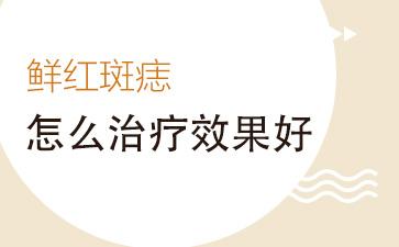 上海胎记医院排名医院:鲜红斑痣怎么治疗效果好