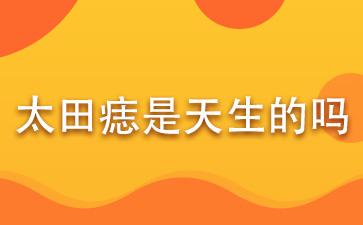 上海做胎记医院有几家:太田痣是天生的吗