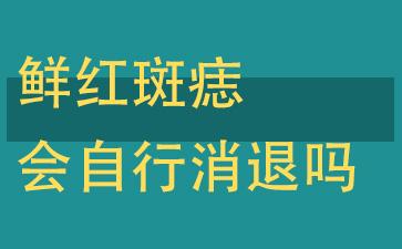 上海做胎记激光哪家医院好:鲜红斑痣会自行消退吗