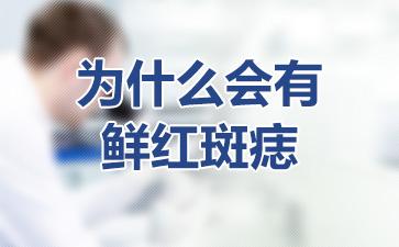 上海胎记血管瘤医院:为什么会有鲜红斑痣