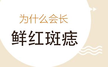 上海看胎记比较好的医院:为什么会长鲜红斑痣