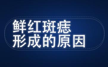上海去胎记最好医院:鲜红斑痣形成的原因