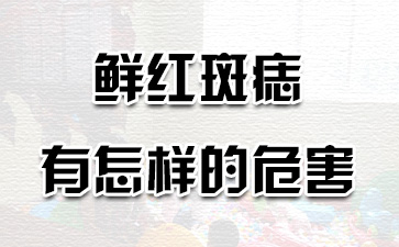 上海去胎记哪家专业:鲜红斑痣有怎样的危害