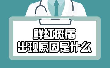 上海第一胎记医院排名:鲜红斑痣出现原因是什么