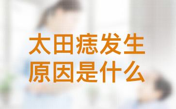 上海去除胎记:太田痣发生的原因是什么