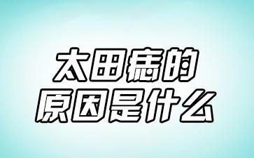 上海做胎记医院:太田痣的原因是什么