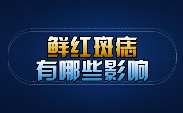 上海市医院胎记科:鲜红斑痣有哪些影响