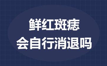 上海治疗鲜红斑痣哪家医院好?鲜红斑痣会自行消退吗?