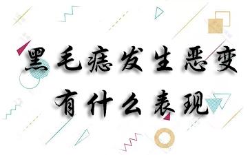 黑毛痣发生恶变有什么表现?上海哪个医院胎记科好?
