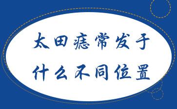 太田痣常发于什么不同位置?上海看儿童胎记哪家医院好?