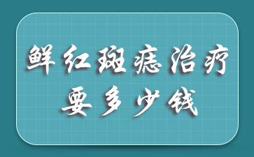鲜红斑痣治疗要多少钱?上海哪家医院可以去胎记?