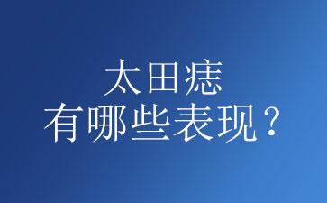 太田痣症状表现有哪些